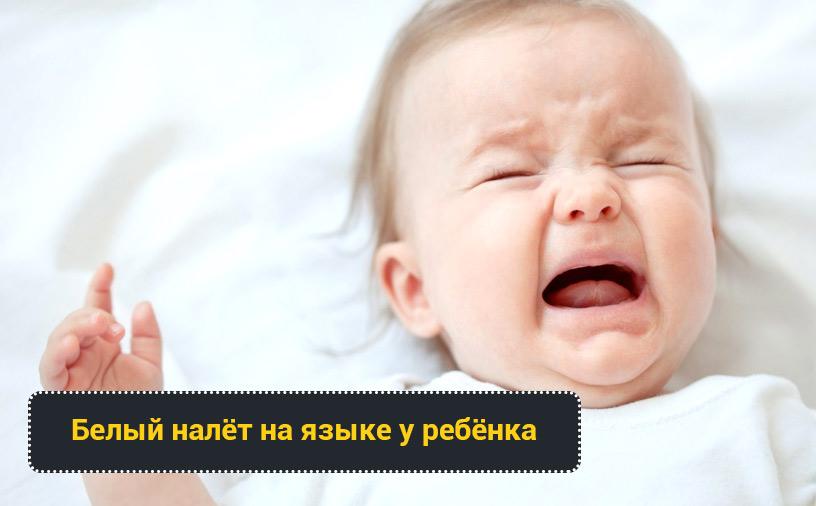 Белый налёт на языке у ребёнка