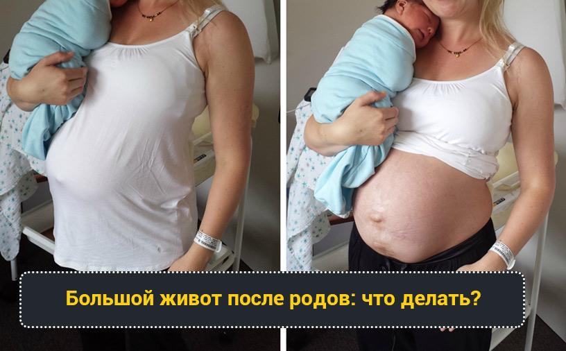 Живот после родов
