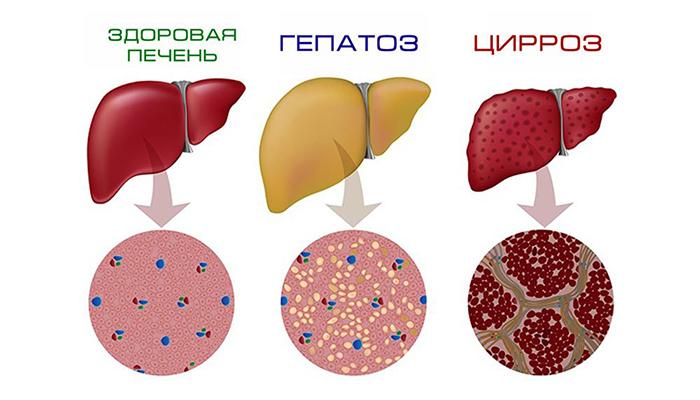 жировой гепатоз при беременности