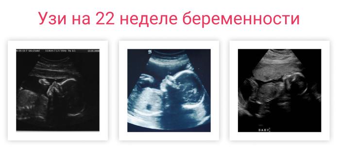 узи на 22 неделе беременности