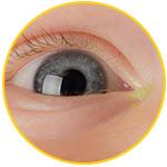 Зеленые выделения из глаз у новорожденных