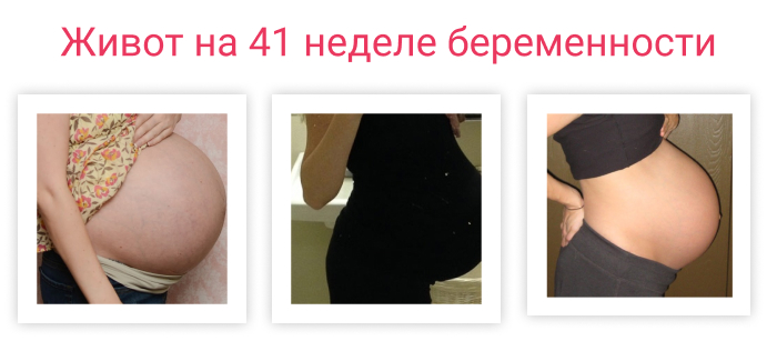 живот на 41 неделе беременности