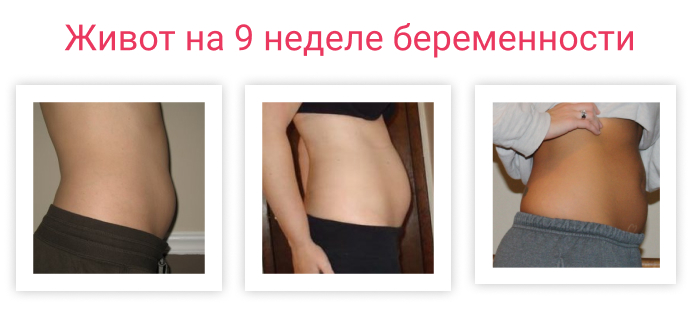 живот на 9 неделе беременности